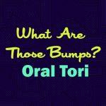 What Are Those Bumps? Oral Tori